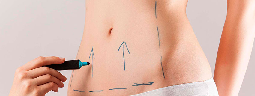 lipoaspiracao e abdominoplastia